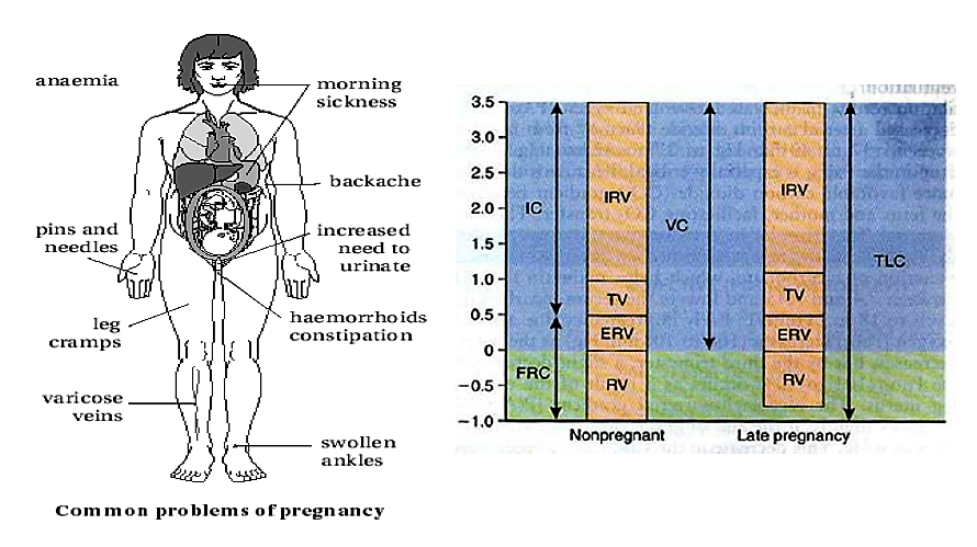 Common problem of pregnancy Maternity