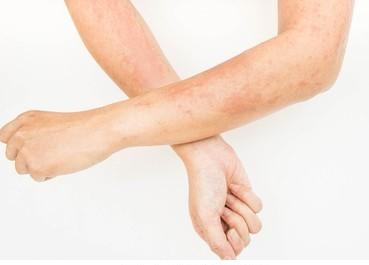 skin-rashes-allergies-contact-dermatitis-260nw-610357316-2